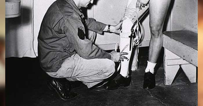 prosthetic leg fitting